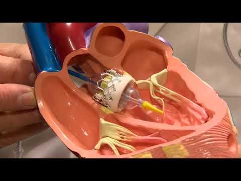 Implantation percutanée d'une prothèse valvulaire aortique (TAVI)