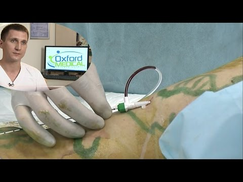 больницы волгограда по лечению варикоза