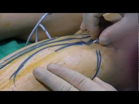 Calf reduction mp4 - YouTube