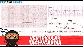 ACLS Algoritma Cardiac Arrest (Henti Jantung, Ventricular Tachycardia, Fibrilation, Asystole, PEA).