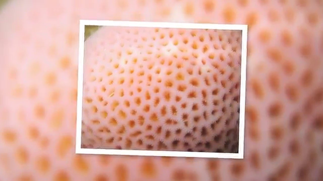 The Fear Of Small Holes Trypophobia Youtube