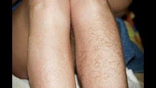 Как навсегда избавиться от волос на ногах/Что такое ВАРИФОРТ