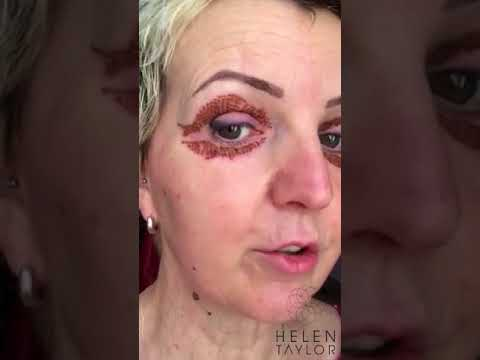 Download Day 4 of Vicki's post treatment vlog