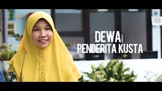 Penyakit Kusta Di Indonesia Pasca Era Eliminasi.