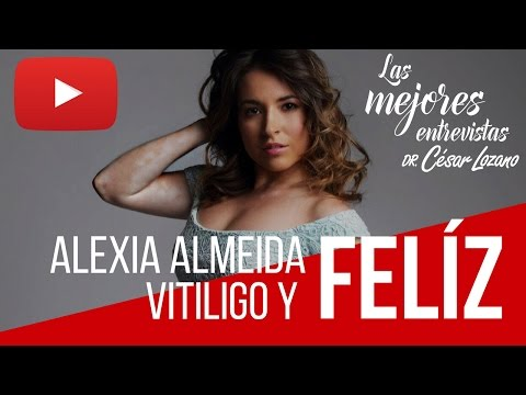 ¡Vitiligo y Felíz! - Entrevista con Alexia Almeida - Dr. César Lozano