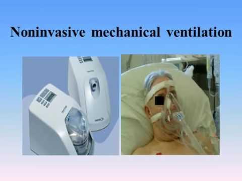 Management of acute exacerbation of COPD in RICU