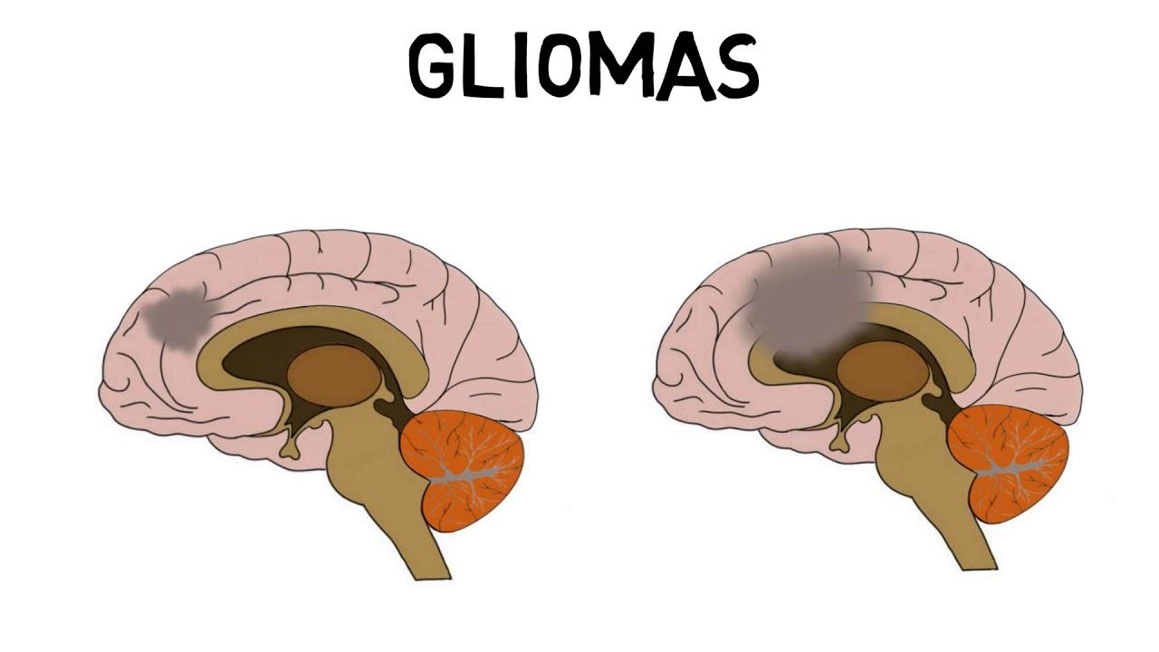 2-Minute Neuroscience: Brain tumors