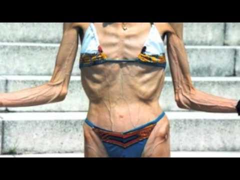 Anorexia Nervosa PSA cali