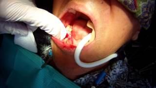 Implant Infection Removal #7