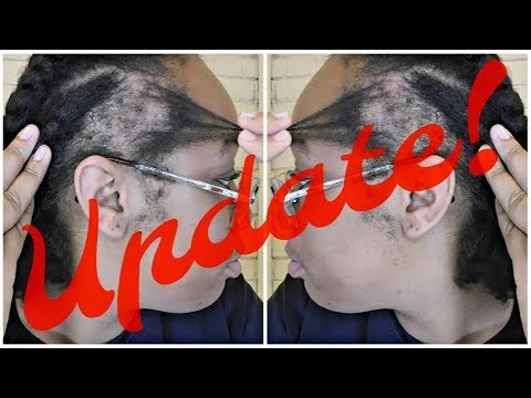 Traction Alopecia UPDATE    Edges Regrowth