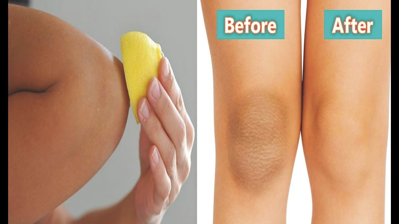 How To Get Rid Of Dark Knees Naturally