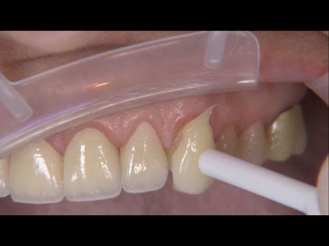 Procera Zirconia Indications & Clinical Techniques