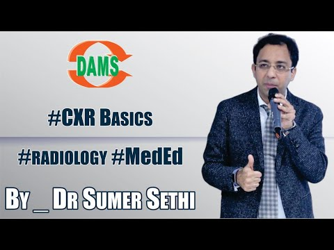#CXR Basics - By Dr. Sumer Sethi #radiology #MedEd