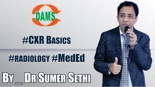 CXR Basics - By Dr. Sumer Sethi