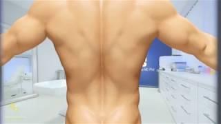 Liposuction 3D