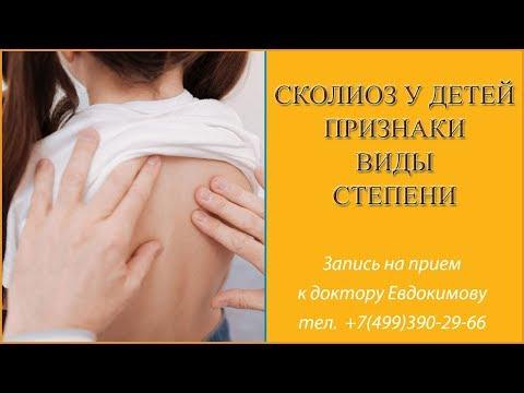 Cколиоз у детей. Признаки, симптомы, виды, степени и лечение остеопатией. Доктор Евдокимов. Часть 1