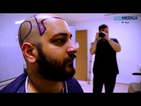 Hair Transplantation All Steps ! FUE + Needle Free Anesthesia with Dr.Acar www.cosmedica.com