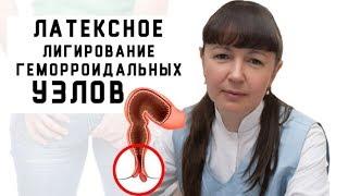 Методы лечения хронического геморроя. Латексное лигирование геморроидальных узлов