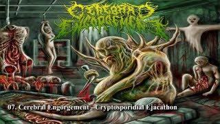 My Top 10 Slamming Brutal Death Metal Bands