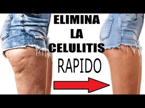ejercicios para eliminar celulitis rapidamente