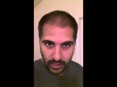 Hair Transplant Review - Day 1 Blog