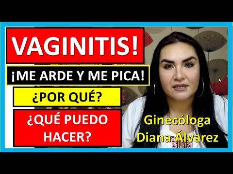 VAGINITIS,😱😱😱 ¡FLUJOS QUE PICAN! Por GINECOLOGA DIANA ALVAREZ