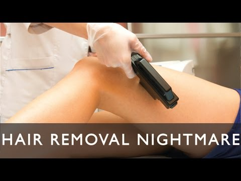 South Florida Lawyer: Laser hair removal nightmare