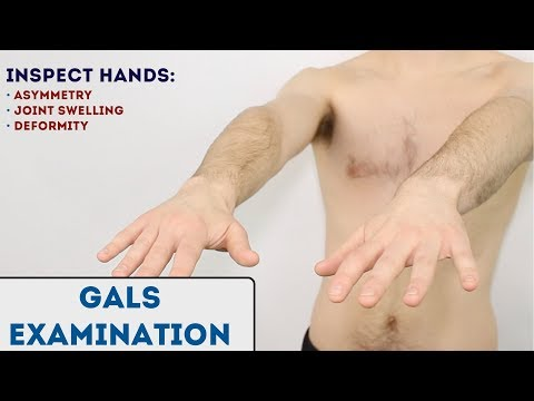 GALS examination (Gait, Arms, Legs, Spine) - OSCE Guide