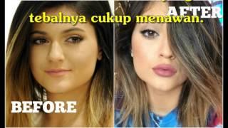 Tertipu Jasa Online, Suntik Bibir Wanita Jadi Ngeri, Ternyata Profesi Asli Dokter Gadungan Adalah