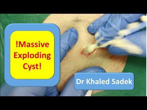 Massive 20 year Cyst Explosion. LipomaCyst.Com Dr Khaled Sadek
