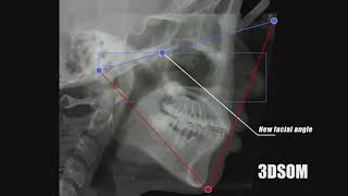 3DSOM ORTHODONTIC Non extraction case of Bimaxillary protrusion