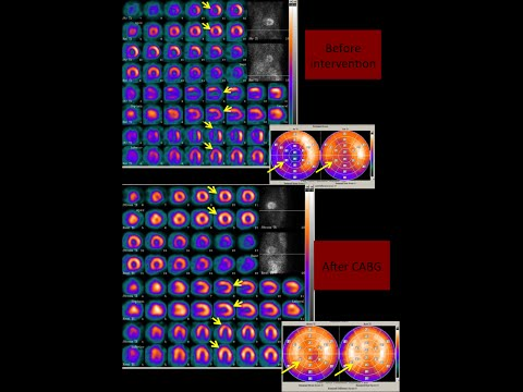 Myocardial Perfusion Imaging (NMINE India)