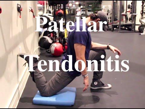 GUIDE to Patellar Tendonitis Correction (Jumper