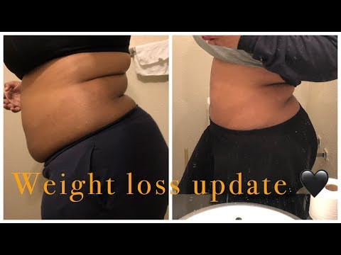 my-weight-loss-journey- -apple-cider-vinegar-(acv)-pills-mini-update- -dropping-weight?