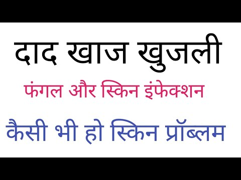 इंफेक्शन और उपचार।fungal infection treatment in hindi|athlete's foot, oral thrush, scabies,itching