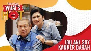 Ibu Ani Yudhoyono Dirawat di Singapura Karena Kanker Darah