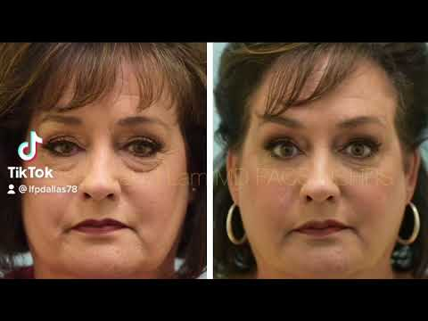 Dallas Fat Transfer, Upper and Lower Blepharoplasty/ Eyelid Surgery Before and After Photos