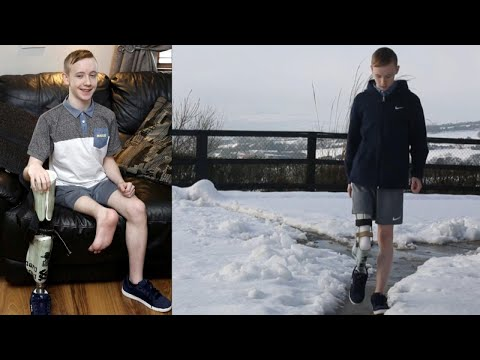 15-Year-Old Gets Foot Re-Attached Backwards After Leg Is Amputated From Cancer