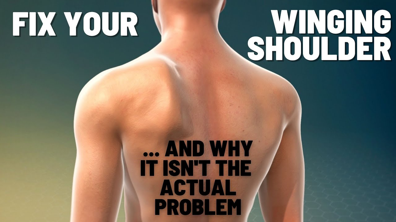Download Exercises To Fix A Winging Shoulder Blade And Fix Scapular Dyskinesia To Help Relieve Shoulder Pain