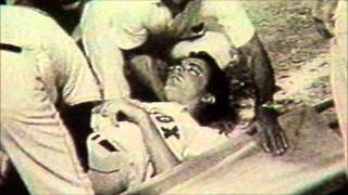 Tony Conigliaro Tribute-tragic injury ending 1 of the most promising young careers in MLB history..