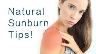 NATURAL SUNBURN REMEDIES Thumbnail