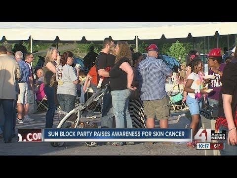 Sun block party raises awareness about skin cancer