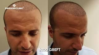 Greffe de cheveux 6200 greffe