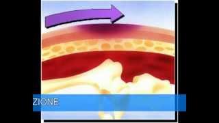 La Prevenzione delle Lesioni da Pressione