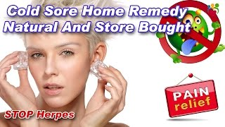 Home Remedies For Cold Sores | Cold Sore Home Remedy Natural And Store Bought.