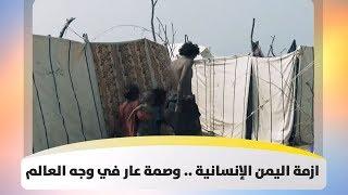 ازمة اليمن الإنسانية .. وصمة عار في وجه العالم
