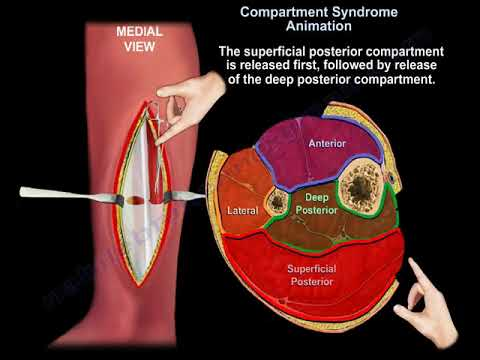 Compartment Syndrome Diagnosis And  Treatment  - Everything You Need To Know - Dr. Nabil Ebraheim