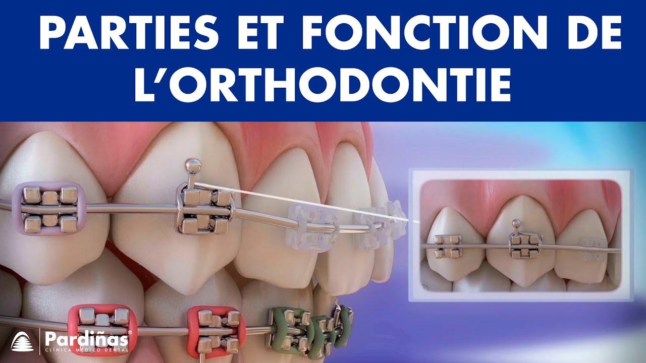 Download Appareil dentaire – Parties et fonction de l'orthodontie ©