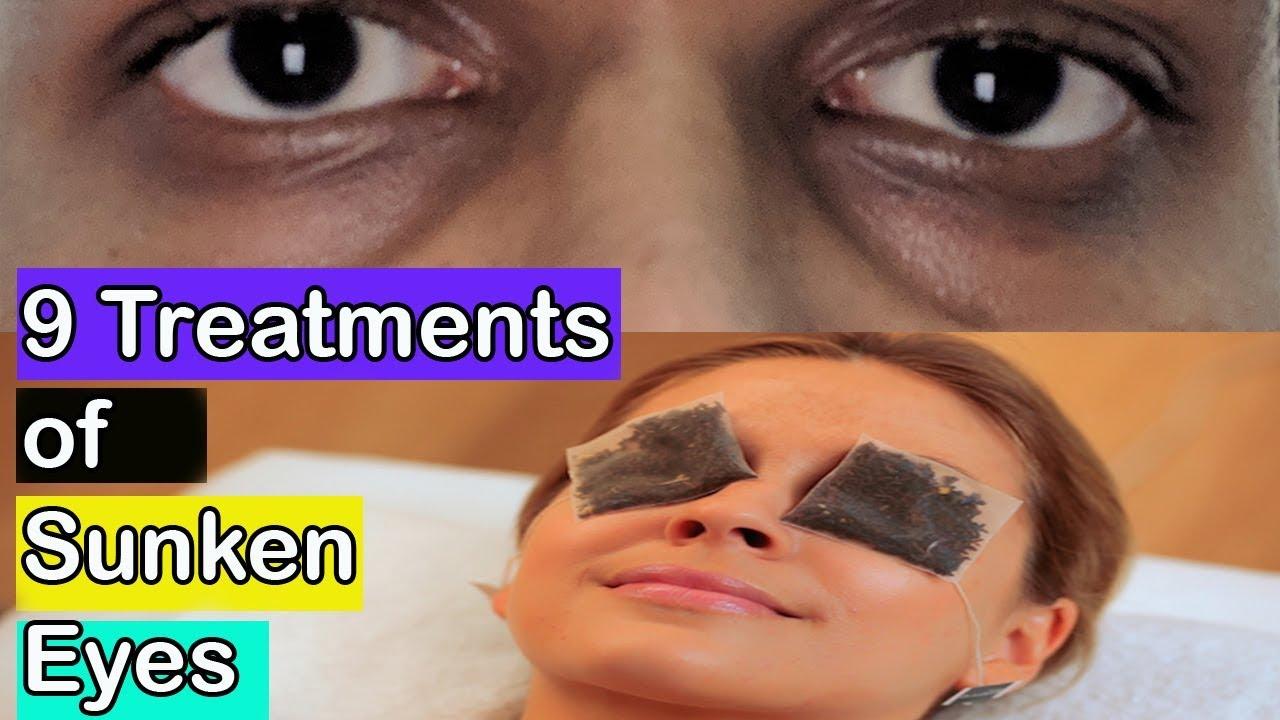 sunken eyes treatment - 1280×720
