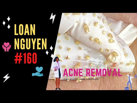 BEST BLACKHEADS EXTRACTION AND WHITEHEADS (160) | Loan Nguyen